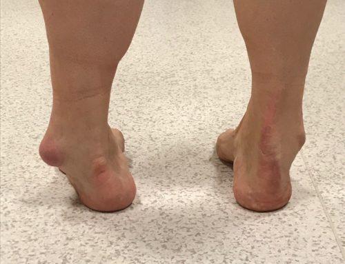 Zabieg korekcji deformacji stawu skokowego